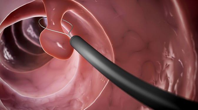 animation of polypectomy